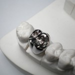 Dental Full Metal Crown 150x150 The Disadvantages of Metal in Tooth Caps