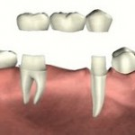 dental bridge2 150x150 Dental Partial Vs. Bridges