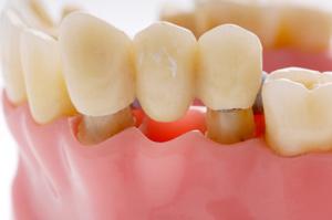 dental bridge How Long Do Dental Bridges Last?