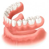 denture How to Decide Between Immediate Dentures and Standard Dentures