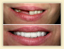 Secure Denture Adhesive >> Advantages and Disadvantages of Dental Bridges ...