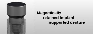 magnadent 300x112 The Safety of an MRI for Dental Implants