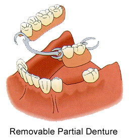 partial How to Replace Missing Teeth
