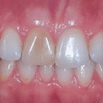 porcelain veneers tooth1 150x150 The Side Effects of Veneers