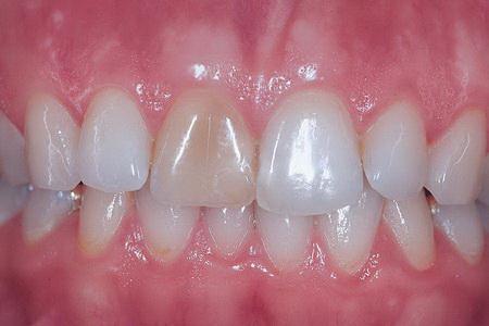 The Side Effects Of Veneers Intelligent Dental
