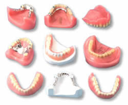 types of RPDs1 How to Decide Between Immediate Dentures and Standard Dentures