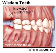 wisdom teeth pictures Wisdom Teeth Removal: General Vs. Local Anesthesia