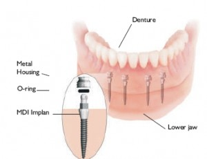 IMTECMiniImplantsDenture 300x230 Benefit of Mini Denture Implants