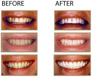 Laser teeth whitening Before After 300x253 Laser Dental Cleaning