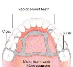 Parts of a Denture What Is a Rest on a Partial Denture?
