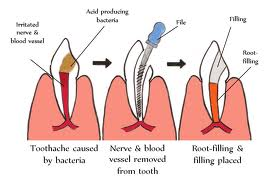 Root Canal Treatment vs. False teeth | Intelligent Dental