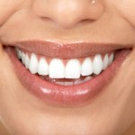 WHITE 150x150 Home Remedies for Teeth Whitening