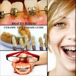 cramic teeth 150x150 How to Clean Ceramic Teeth