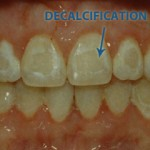 decalcification 150x150 How to Reverse Decalcification