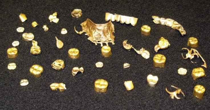 Buying Dental Gold Intelligent Dental