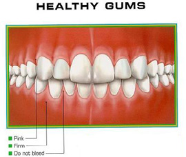 how to care for gums ampteeth intelligent dental