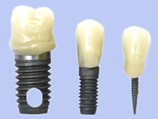 mini implants Benefit of Mini Denture Implants