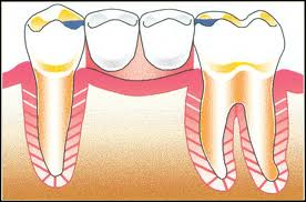 tooth support What Is a Rest on a Partial Denture?