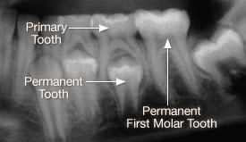 x ray Two sets of teeth in our lifetime