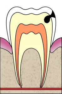 Cavity Dentin 198x300 Understanding Dental Instruments ( Part 2 )