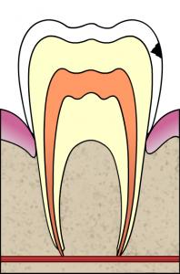 Cavity Enamel 198x300 Understanding Dental Instruments ( Part 2 )
