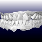 Lok Kyin Frontal 3D 150x150 How to Make a Model of Permanent Teeth