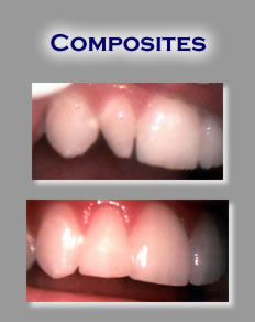 composite Ingredients of Dental Fillings