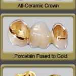 dental crowns 150x150 How to Treat Tooth Decay