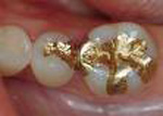 gold20filling201 Ingredients of Dental Fillings