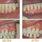 gum graft 150x150 How to Regrow Gums