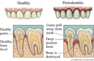 periodontitis 300x195 Difference Between Periodontist & Endodontist