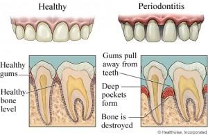 periodontitis 300x195 Difference Between Periodontist & Endodontist