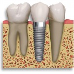 root form implant 150x150 Questions to Ask Your Periodontist Before Dental Implants