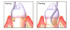 scal plan 300x131 Aggressive periodontitis