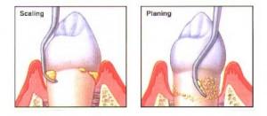 scal plan 300x131 Aggressive periodontitis