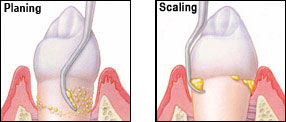 scalingandplaining How to Regrow Gums