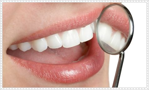 teeth whitening professional Home Bleaching : Making your teeth looks whiter and brighter yourself