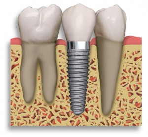 Dental Implant 300x277 Dental Implant Maintenance