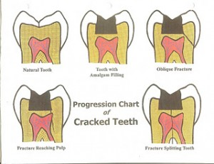Fractured Tooth Illustration 300x231 What To Do During Endodontic Emergency? Part II