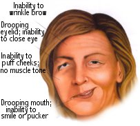 Sagging facial muscles sign of stroke
