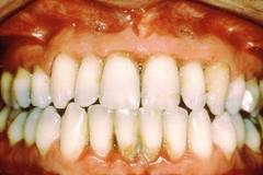 bleeding gums Causes of gum bleeding