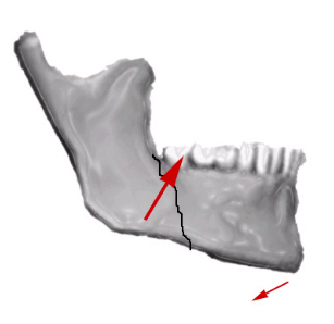 fractures of the mandibular condyle - approaches and osteosynthesis Transparotid approach for mandibular condylar condylar neck and subcondylar fractures by transparotid approaches with partial of osteosynthesis.