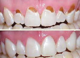 What Is Composite Tooth Coloured Filling Material