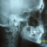 lat ceph 150x150 Indications of different types of extraoral radiographs Part 1