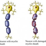 myelin 150x150 Types of nerve injuries