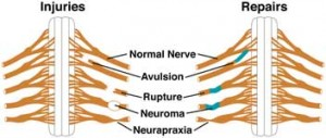 nerve 300x127 Types of nerve injuries