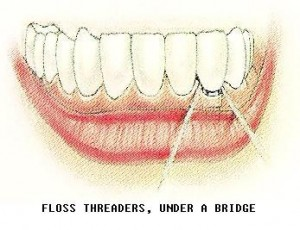 xflossthreadsbridge 300x230 Flossing Basics Part 2