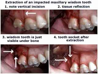 Wisdom Tooth Removal After Guide to Wisdom Teeth ...