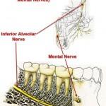 Inferior Alveolar Mental Nerves 518x720 150x150 Mental nerve