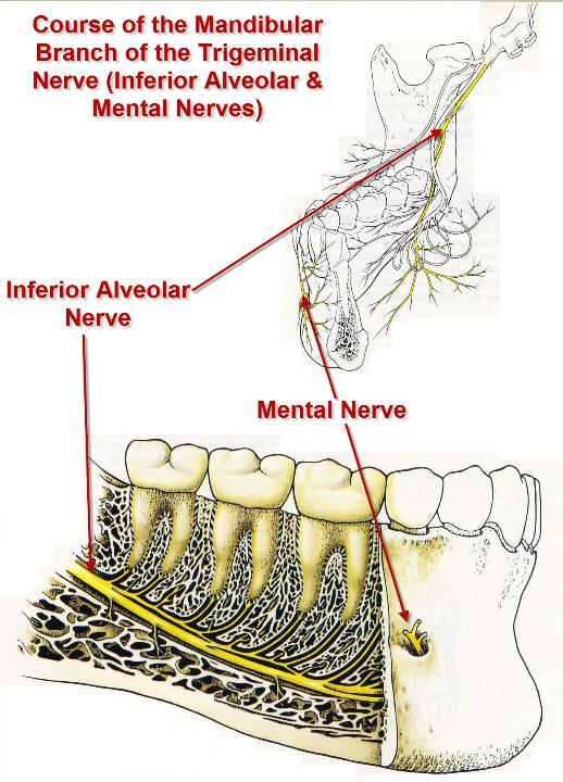 inferior alveolar nerve block 16 728 jpg cb 1248354604